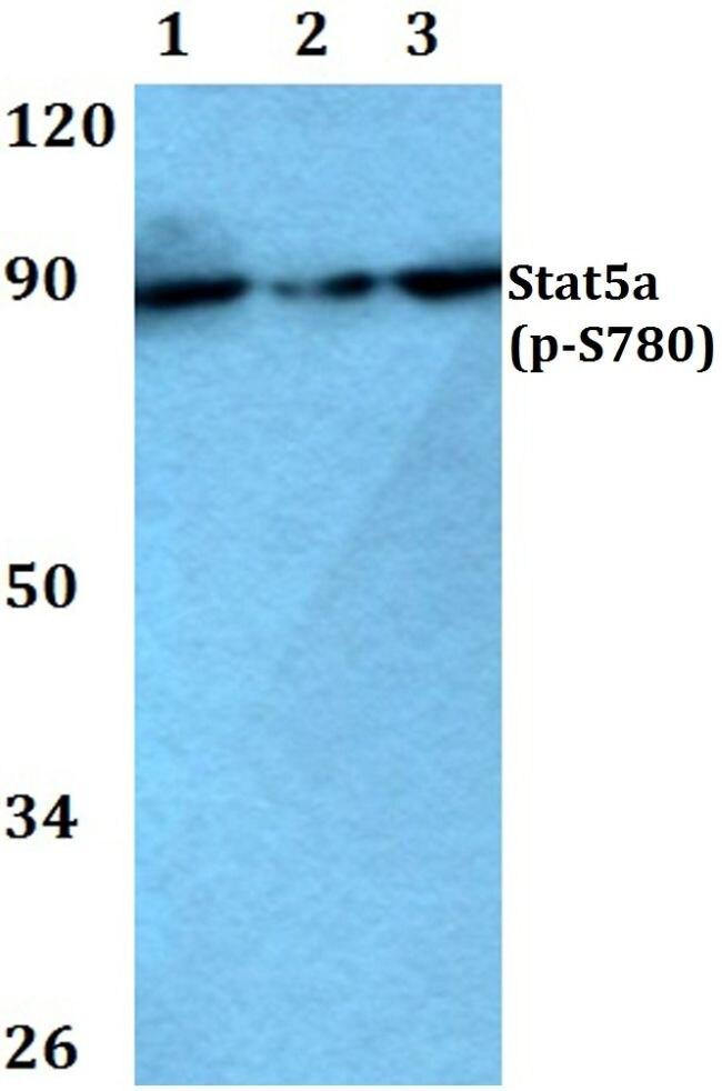 Phospho-STAT5 alpha (Ser780) Antibody (PA5-36688) in Western Blot