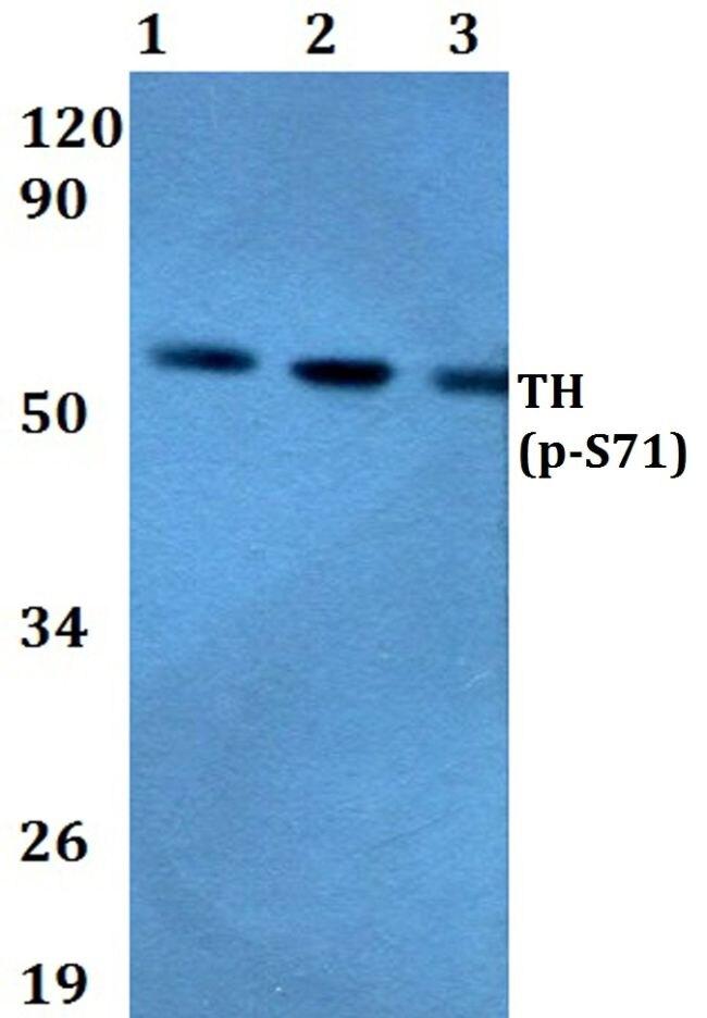 Phospho-Tyrosine Hydroxylase (Ser71) Antibody (PA5-36698) in Western Blot