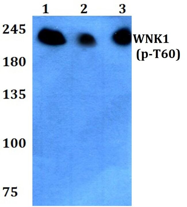 Phospho-WNK1 (Thr60) Antibody (PA5-36701) in Western Blot