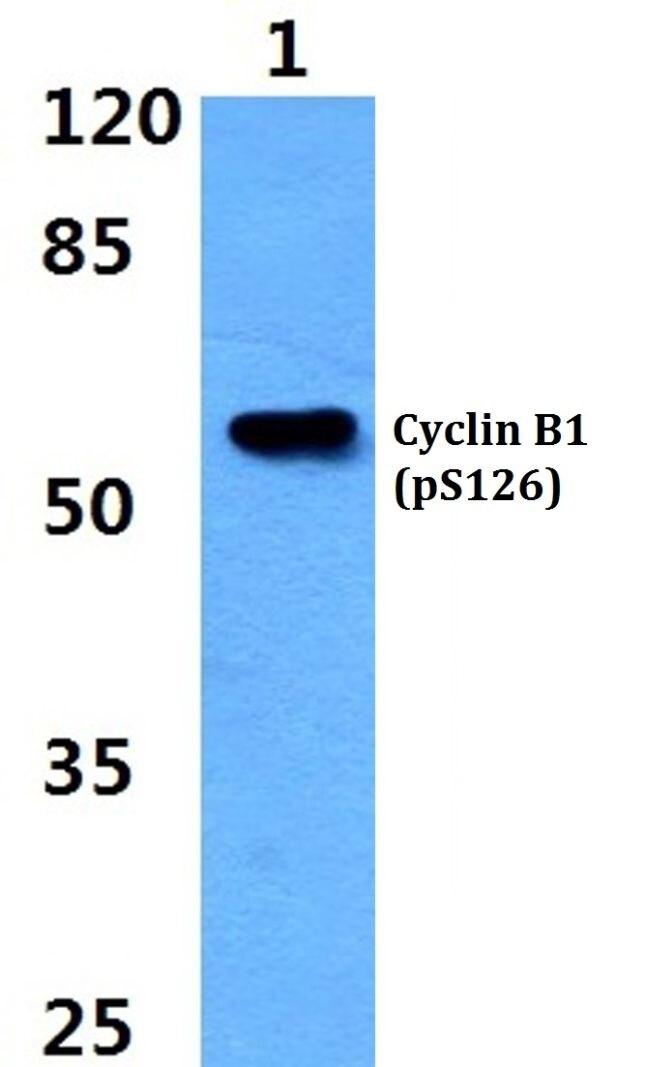 Phospho-Cyclin B1 (Ser126) Antibody (PA5-36712) in Western Blot