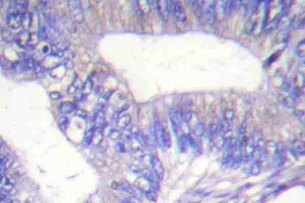 Phospho-SHC (Tyr427) Antibody (PA5-36727)