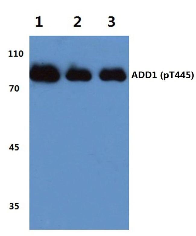 Phospho-alpha Adducin (Thr445) Antibody (PA5-36731) in Western Blot