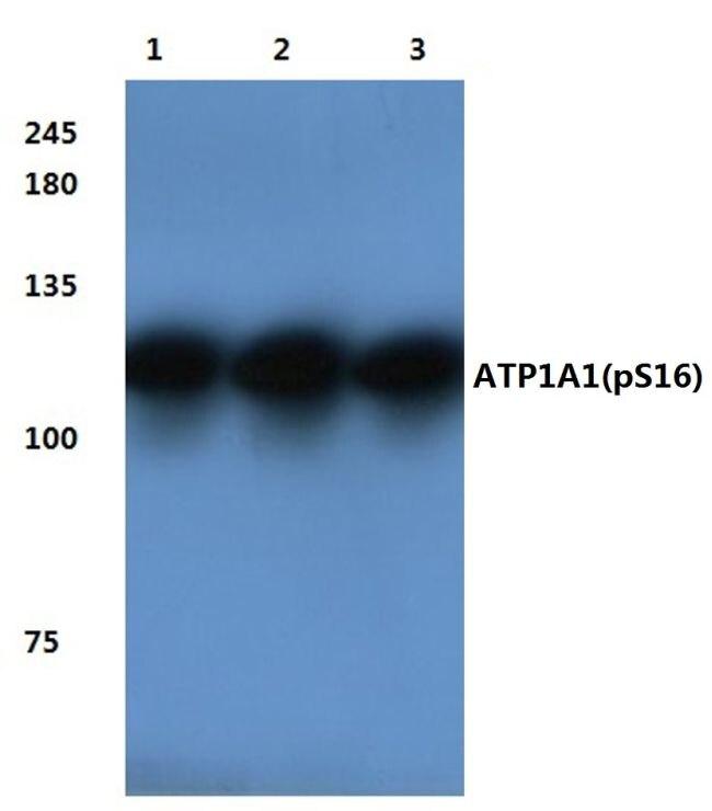 Phospho-ATP1A1 (Ser16) Antibody (PA5-36732) in Western Blot