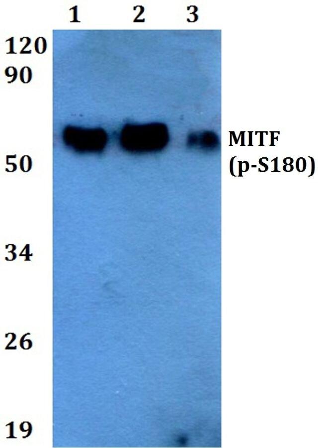 Phospho-MiTF (Ser180) Antibody (PA5-36755) in Western Blot