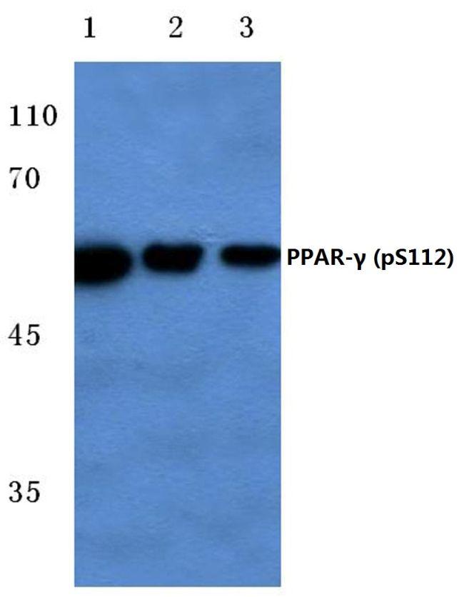 Phospho-PPAR gamma (Ser112) Antibody (PA5-36763) in Western Blot
