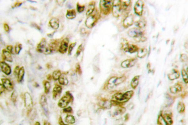 Phospho-IRF3 (Ser385) Antibody (PA5-36775) in Immunohistochemistry (Paraffin)