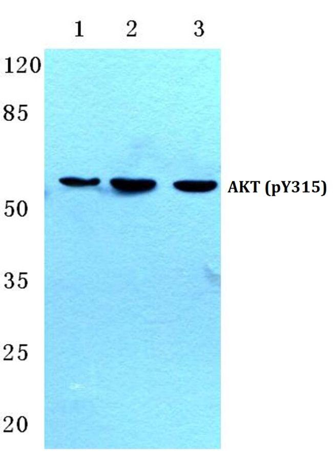 Phospho-AKT Pan (Tyr315, Tyr316, Tyr312) Antibody (PA5-36780) in Western Blot