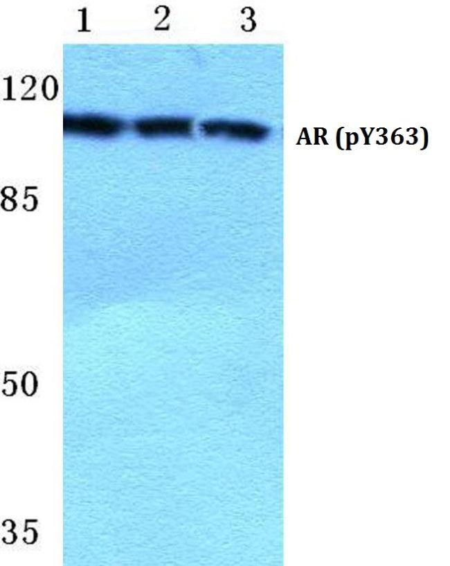 Phospho-Androgen Receptor (Tyr363) Antibody (PA5-36782)