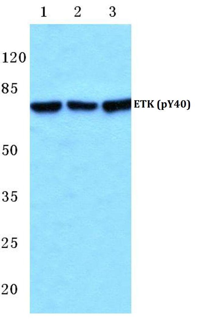 Phospho-ETK (Tyr40) Antibody (PA5-36787)