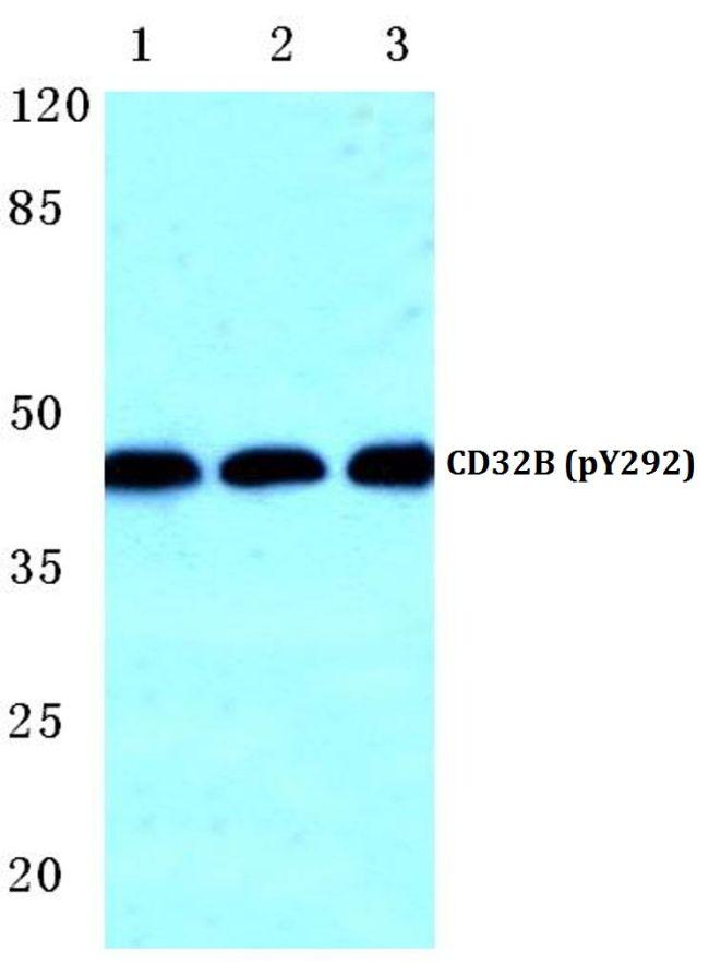 Phospho-FCGR2B (Tyr292) Antibody (PA5-36794)