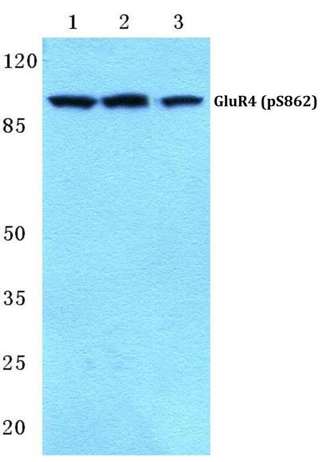 Phospho-GluR4 (Ser862) Antibody (PA5-36807) in Western Blot