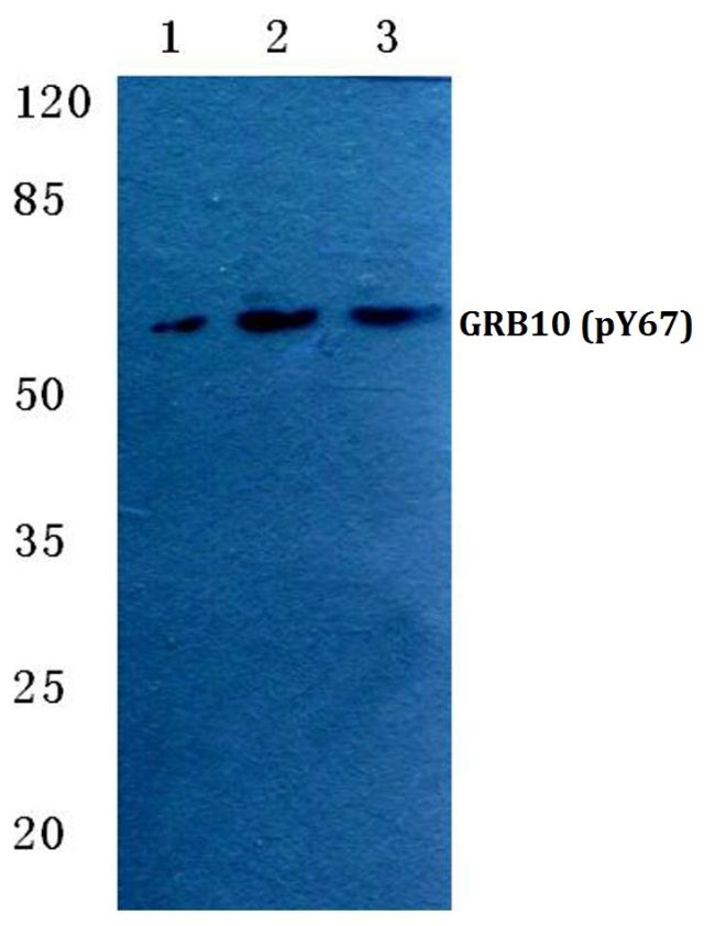 Phospho-GRB10 (Tyr67) Antibody (PA5-36808) in Western Blot