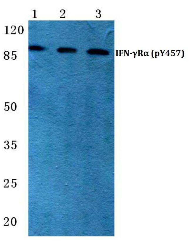 Phospho-IFNGR1 (Tyr457) Antibody (PA5-36812) in Western Blot