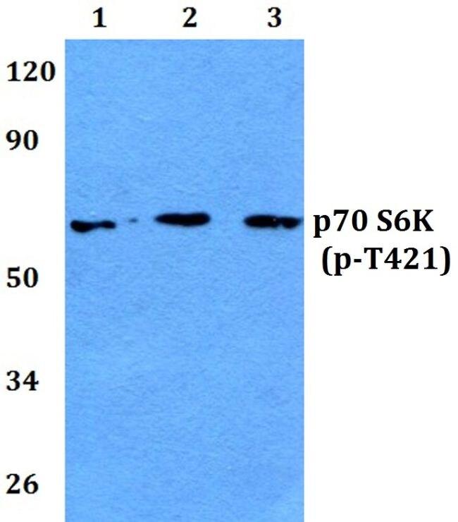 Phospho-p70 S6 Kinase (Thr421) Antibody (PA5-36835) in Western Blot