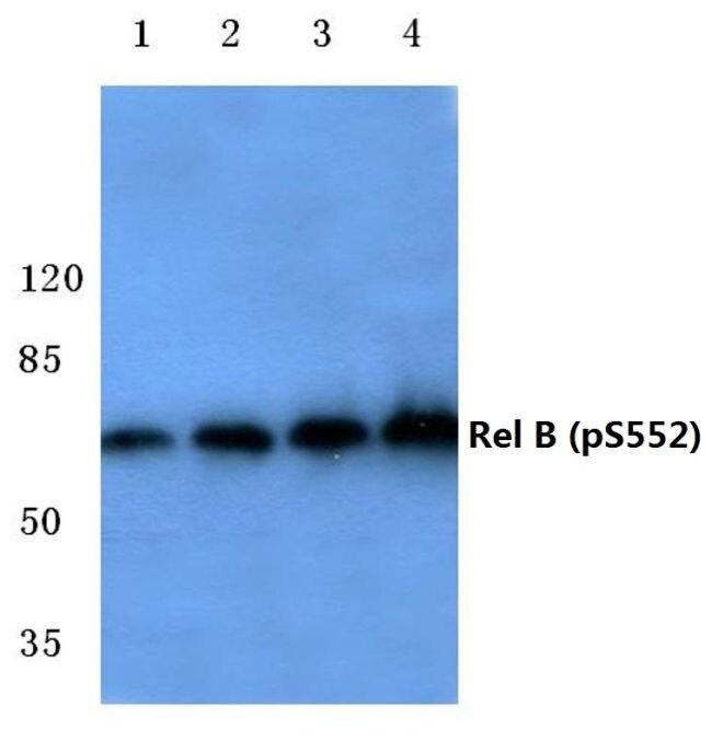 Phospho-RelB (Ser552) Antibody (PA5-36837)