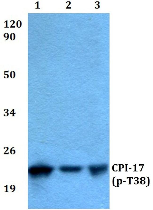 Phospho-CPI-17 (Thr38) Antibody (PA5-36842) in Western Blot