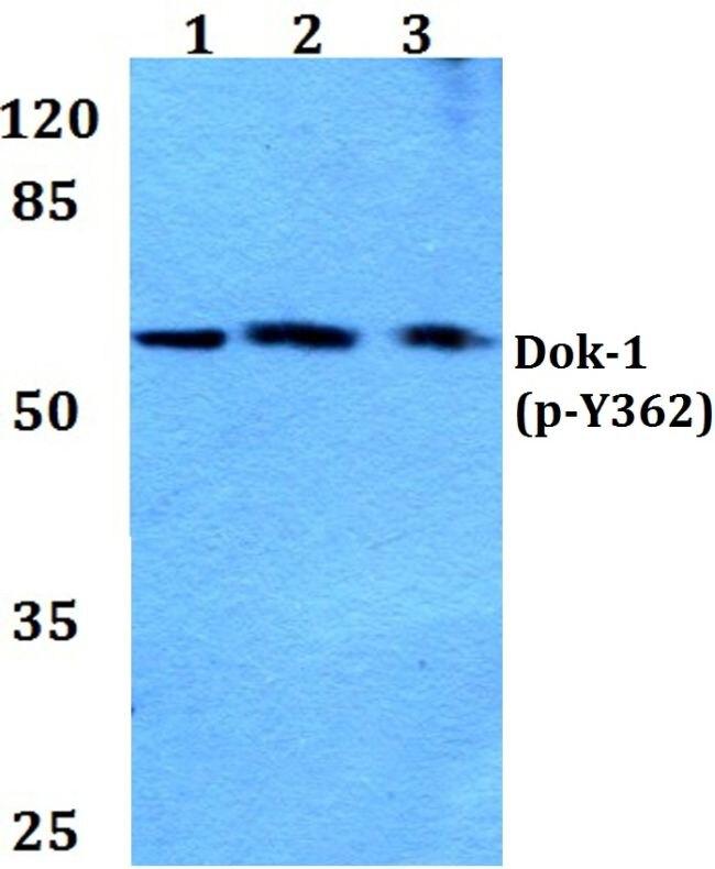 Phospho-DOK1 (Tyr362) Antibody (PA5-36845) in Western Blot