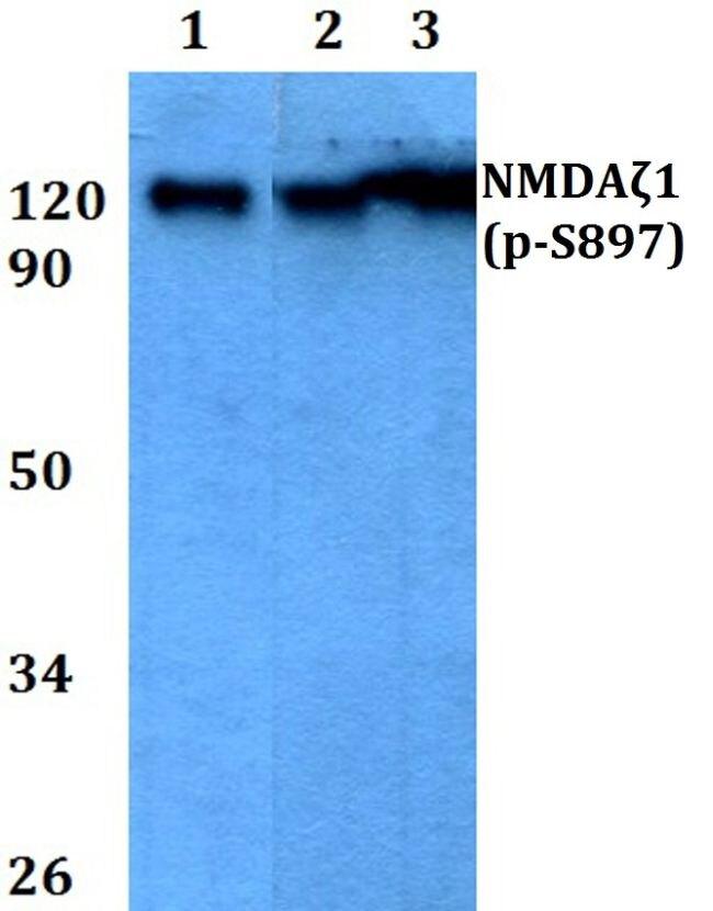 Phospho-NMDAR1 (Ser897) Antibody (PA5-36853) in Western Blot