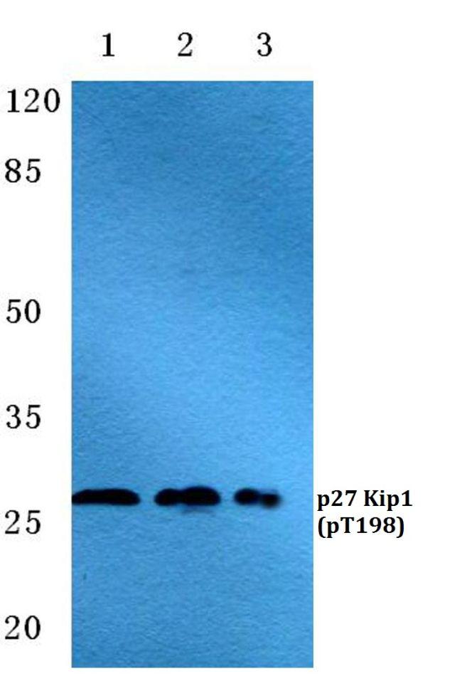 Phospho-p27 Kip1 (Thr198) Antibody (PA5-36862) in Western Blot