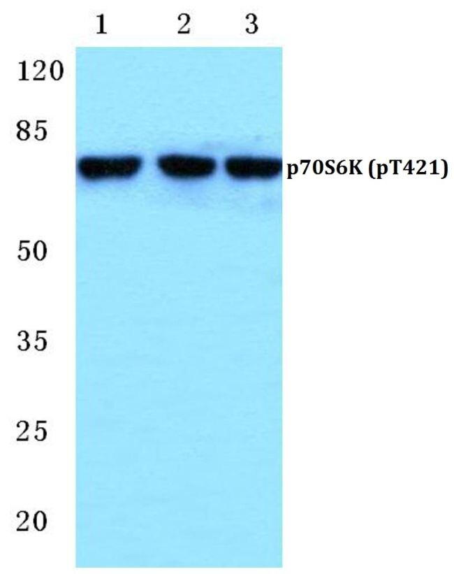 Phospho-p70 S6 Kinase (Thr421) Antibody (PA5-36864) in Western Blot