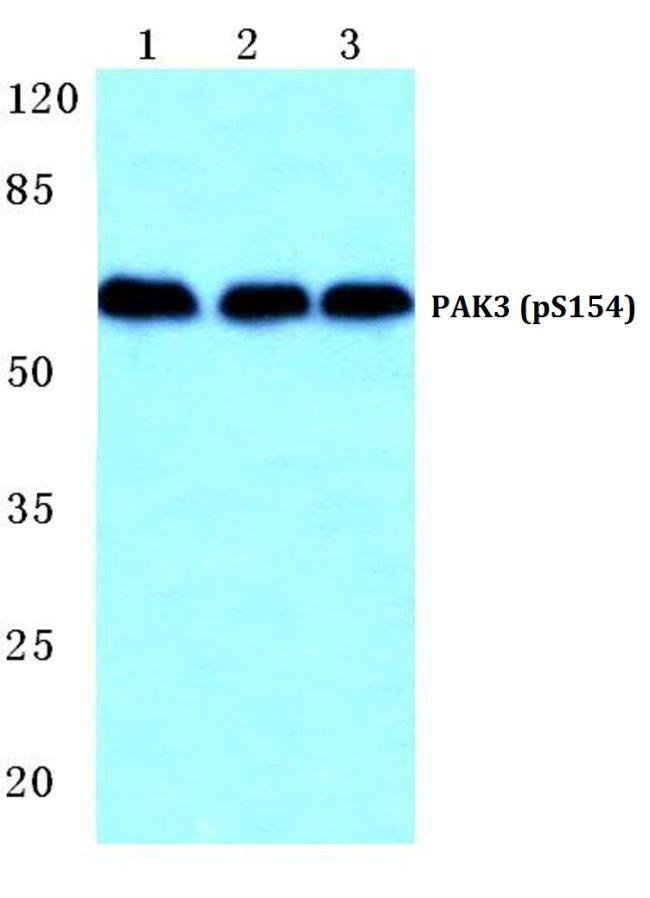 Phospho-PAK3 (Ser154) Antibody (PA5-36866) in Western Blot
