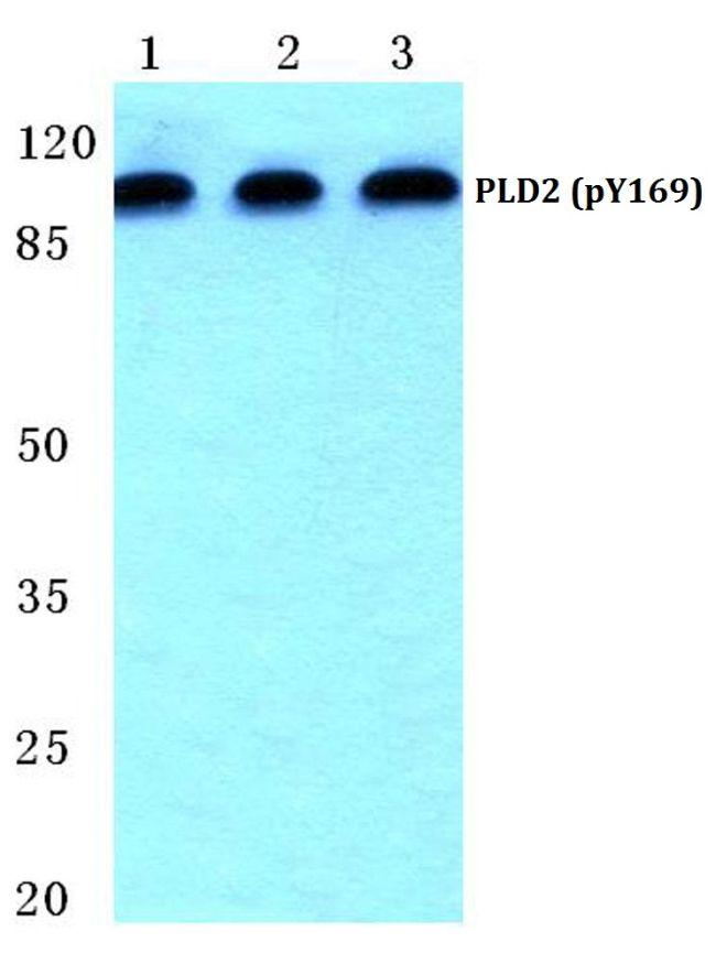 Phospho-PLD2 (Tyr169) Antibody (PA5-36868)