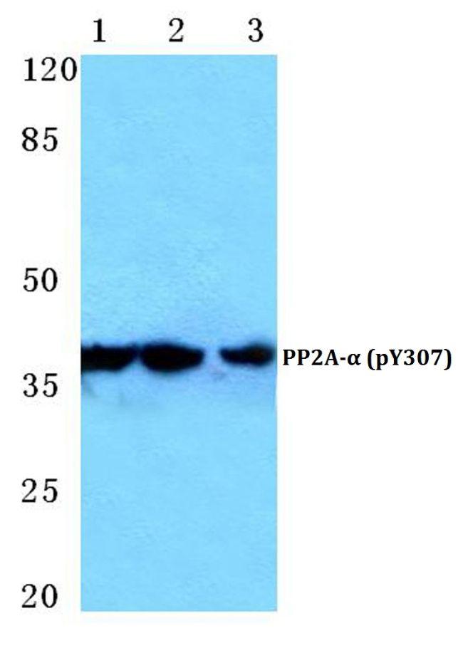 Phospho-PP2A alpha (Tyr307) Antibody (PA5-36874)