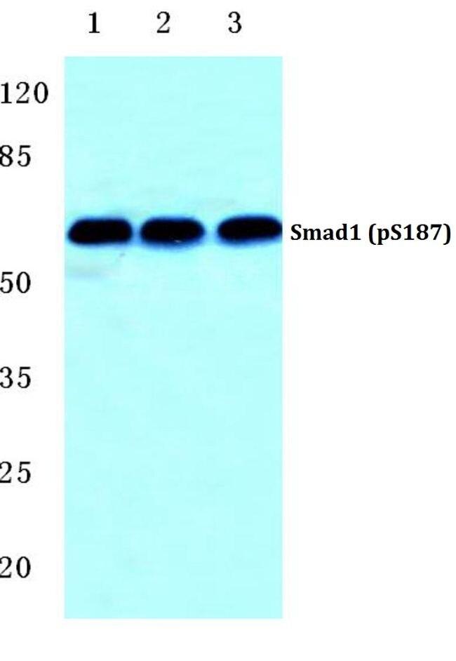 Phospho-SMAD1 (Ser187) Antibody (PA5-36876)