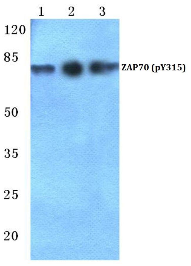 Phospho-ZAP70 (Tyr315) Antibody (PA5-36884) in Western Blot