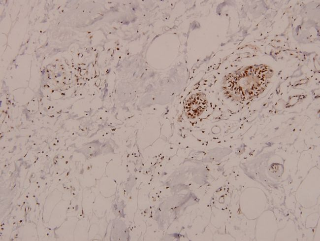 Phospho-AMPK alpha-1,2 (Thr172, Thr183) Antibody (PA5-36885)