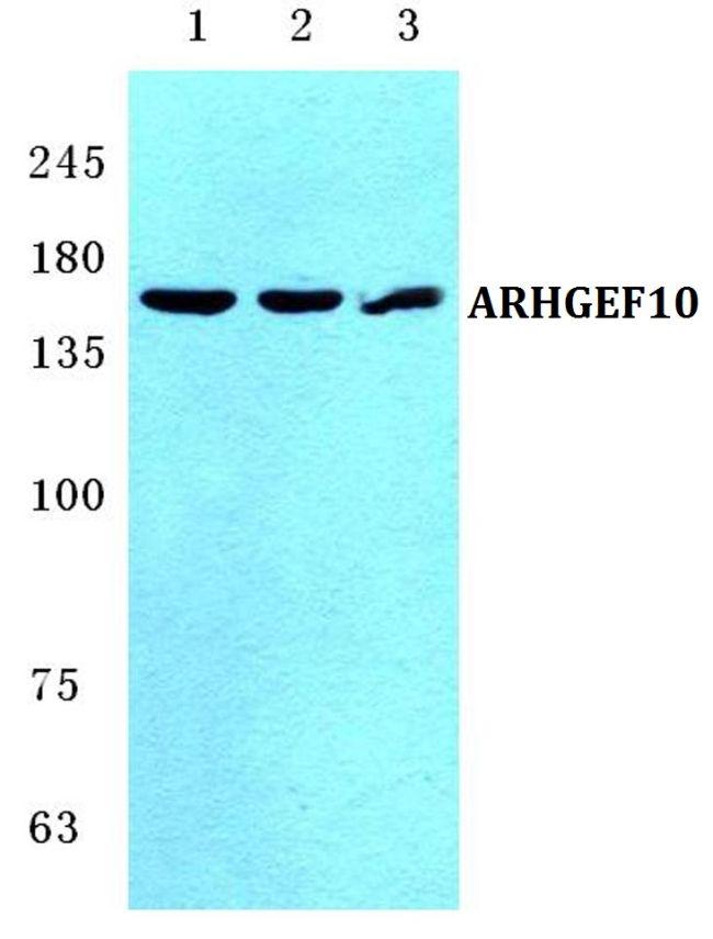 ARHGEF10 Antibody (PA5-36923)