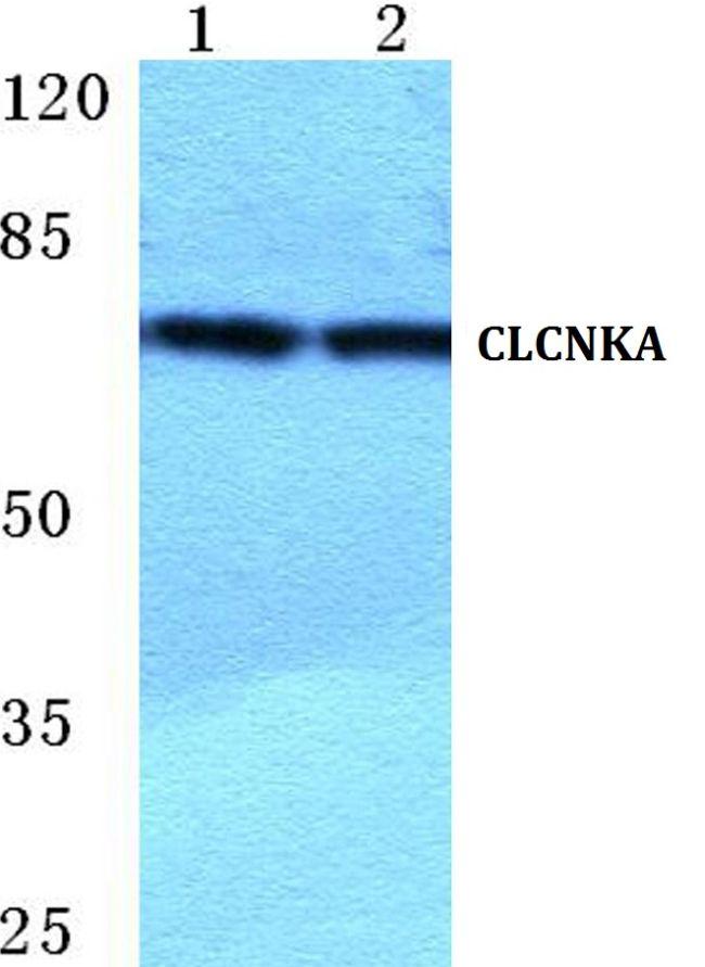 CLCNKA Antibody (PA5-36938) in Western Blot