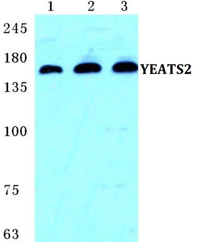 YEATS2 Antibody (PA5-36939)