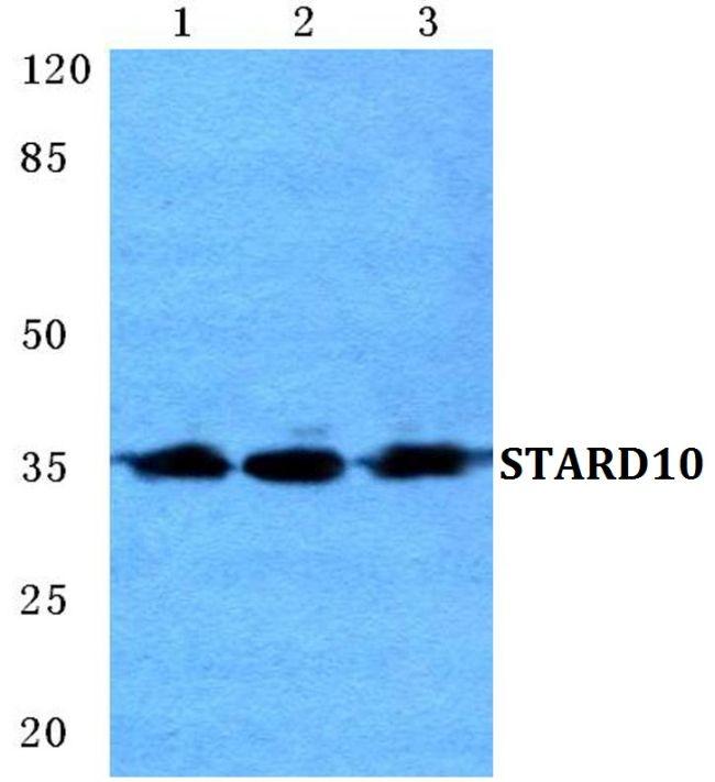 STARD10 Antibody (PA5-36947)