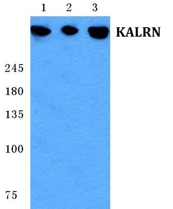 Kalirin Antibody (PA5-36953)
