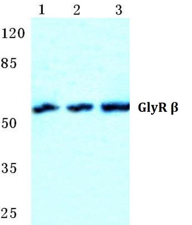 GLRB Antibody (PA5-36958)