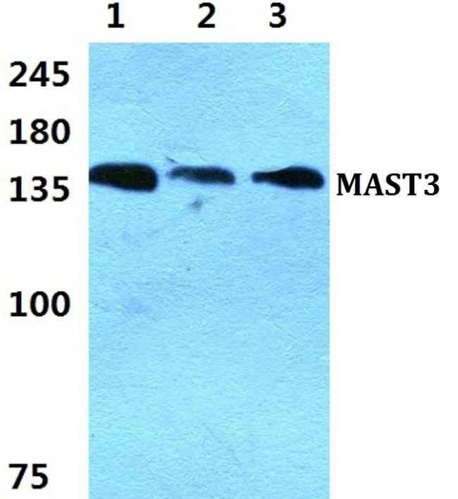 MAST3 Antibody (PA5-36975) in Western Blot