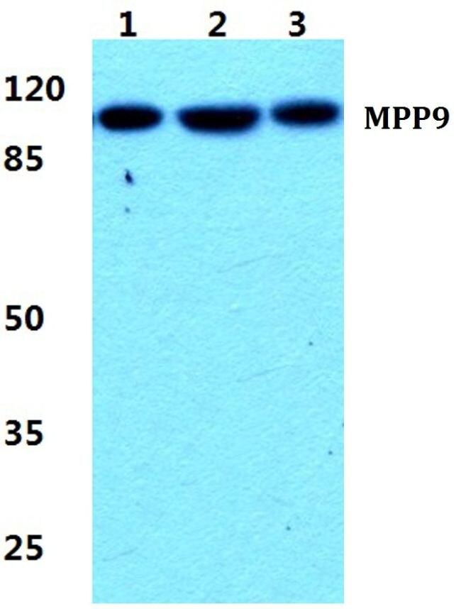 MPP9 Antibody (PA5-36981)