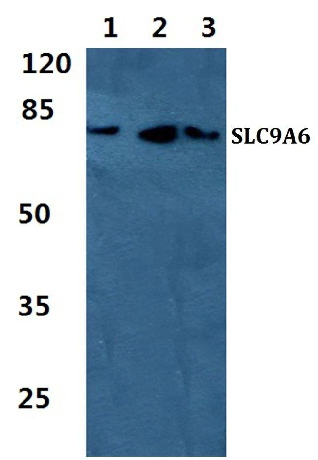 SLC9A6 Antibody (PA5-36997)