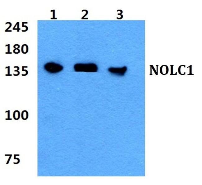 NOLC1 Antibody (PA5-37000) in Western Blot