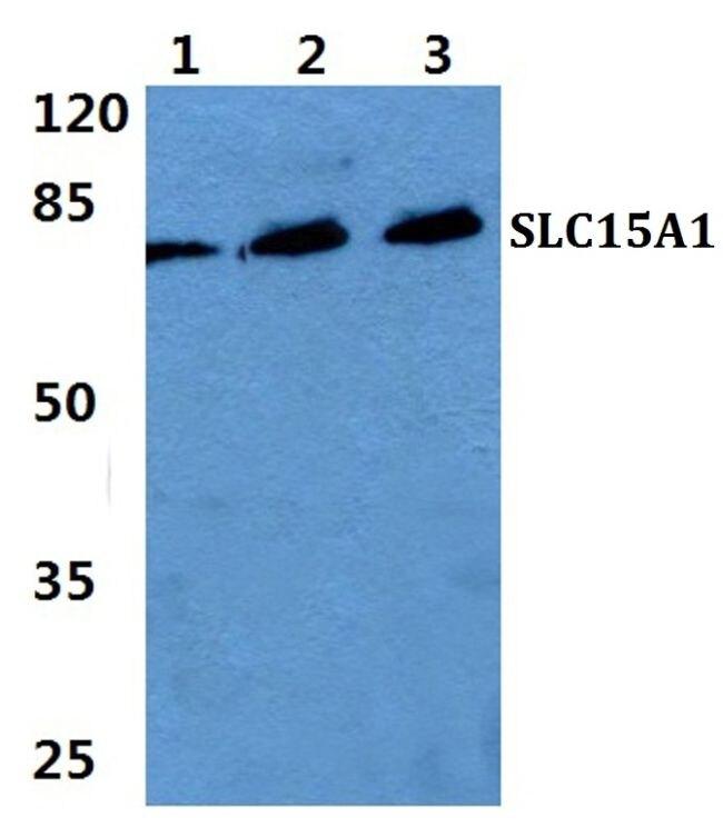 SLC15A1 Antibody (PA5-37010) in Western Blot
