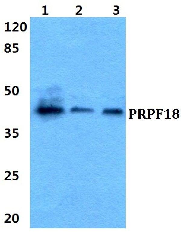 PRPF18 Antibody (PA5-37022)