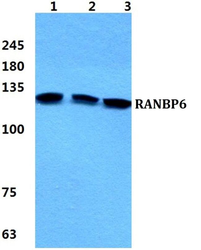 RANBP6 Antibody (PA5-37033)