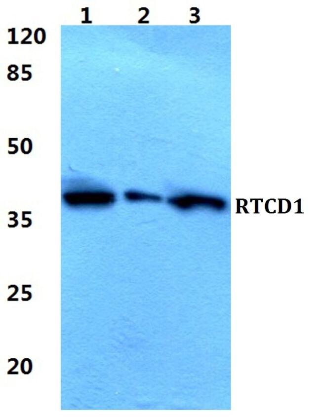 RTCA Antibody (PA5-37049) in Western Blot