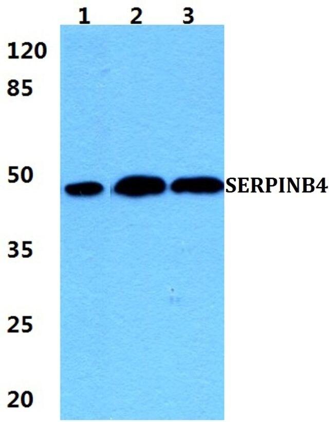 SERPINB4 Antibody (PA5-37051) in Western Blot