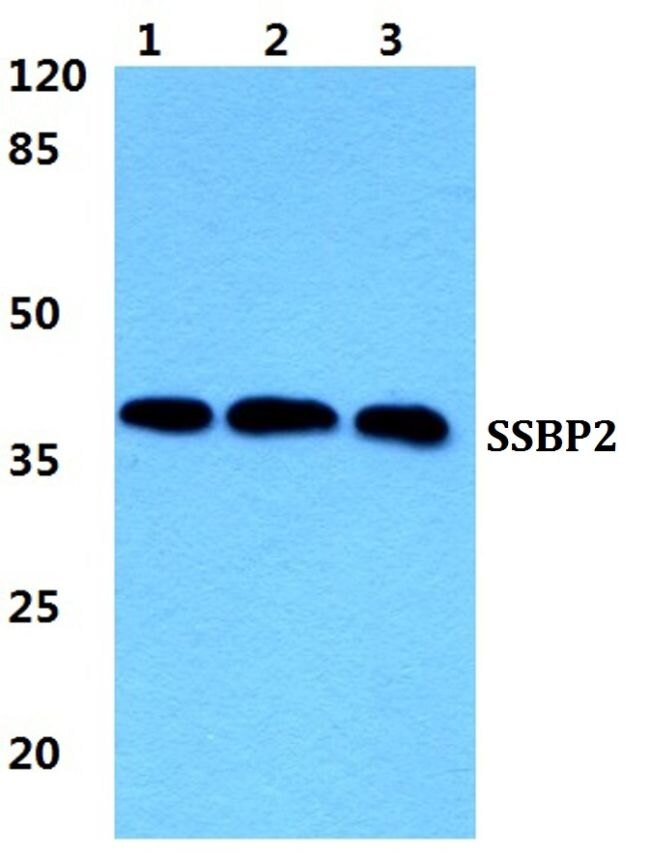 SSBP2 Antibody (PA5-37065) in Western Blot