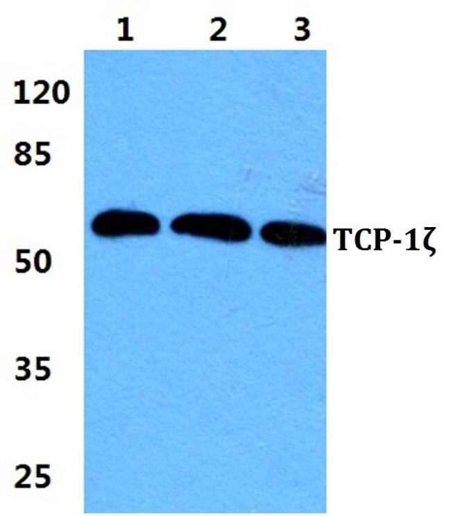 TCP-1 zeta Antibody (PA5-37073) in Western Blot