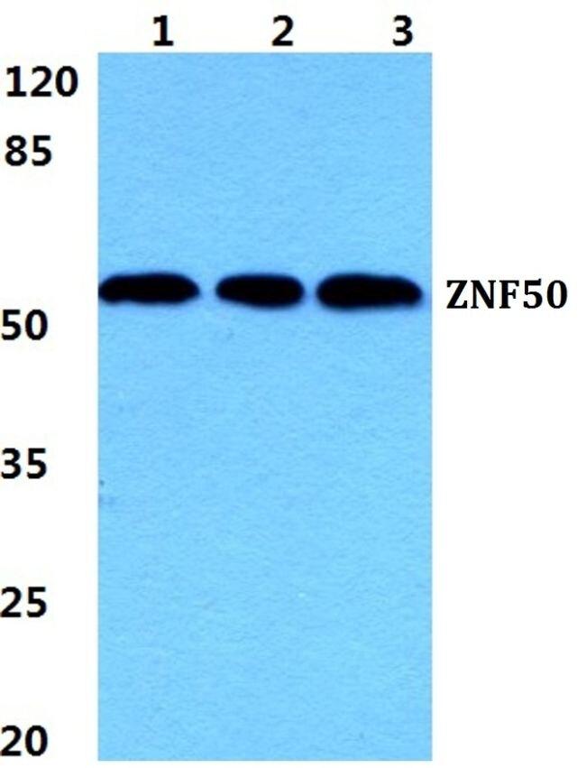 ZNF50 Antibody (PA5-37087)