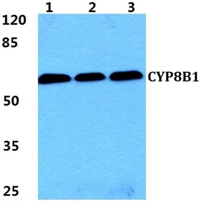 CYP8B1 Antibody (PA5-37088) in Western Blot
