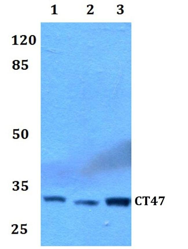 CT47 Antibody (PA5-37100) in Western Blot